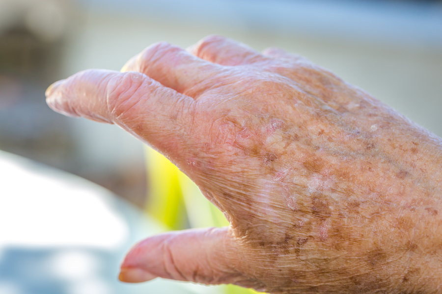 Senior Care in Piedmont CA: Senior Dry Skin Tips