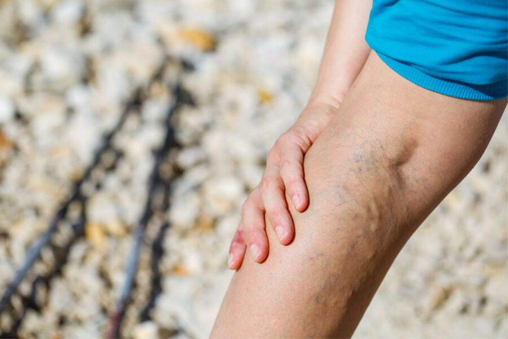 Home Health Care in Berkeley CA: Varicose Veins