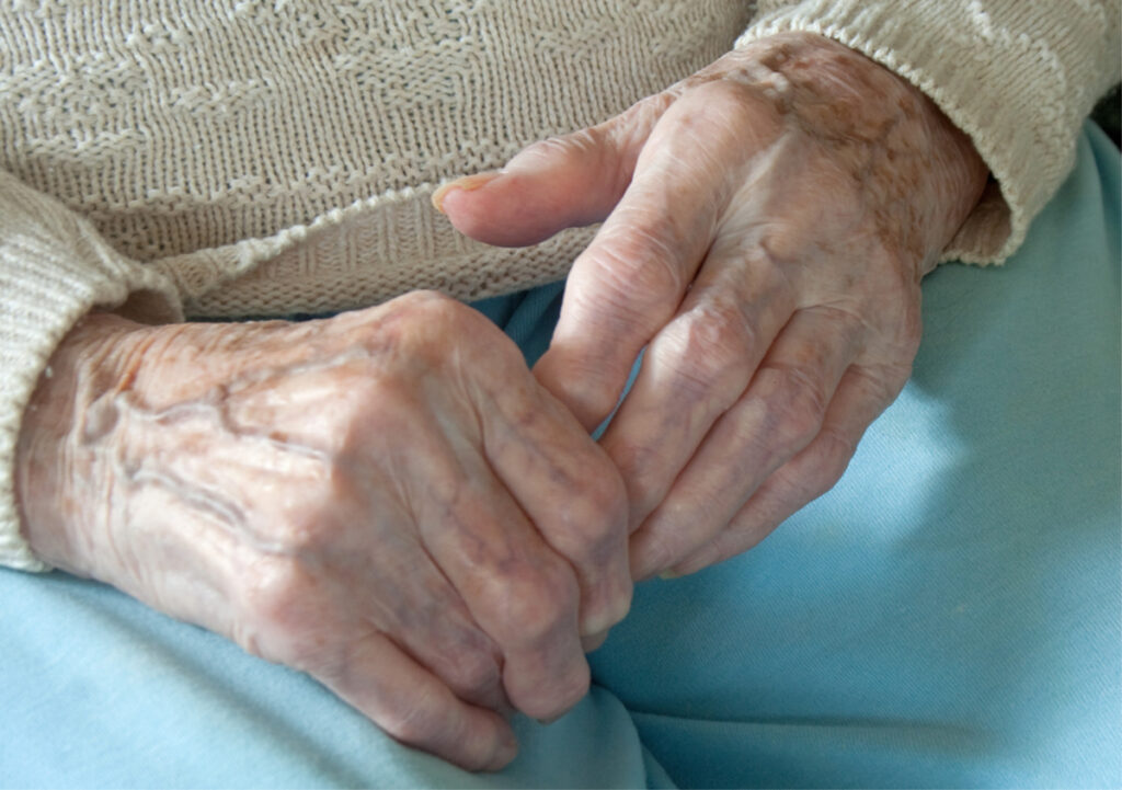 Home Care Services in Piedmont CA: Could it be arthritis?