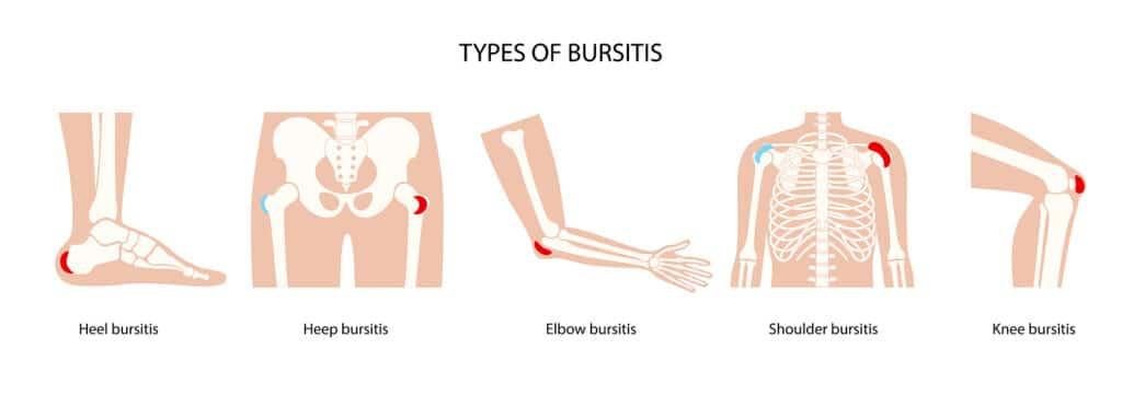 Senior Health: Bursitis